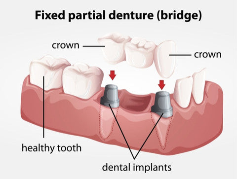 dental bridge garden city dental