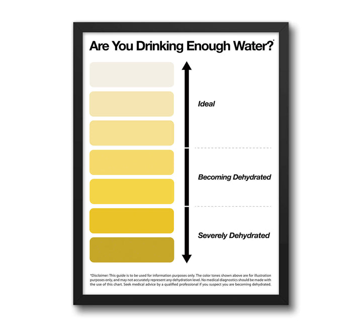 Urine Wee Pee Color Chart for Health and Wellness Main image