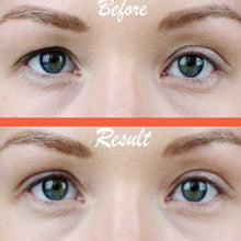 DreamEyes Instant Eye Lift - 6 Months Pack