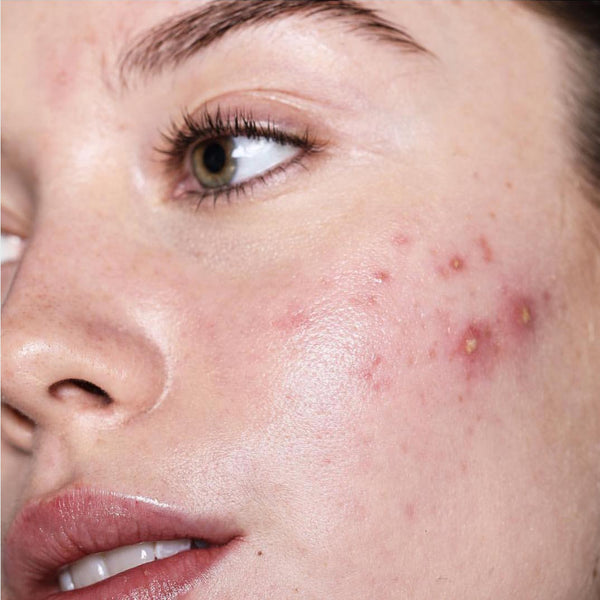 Why Your Acne Products Aren't Working