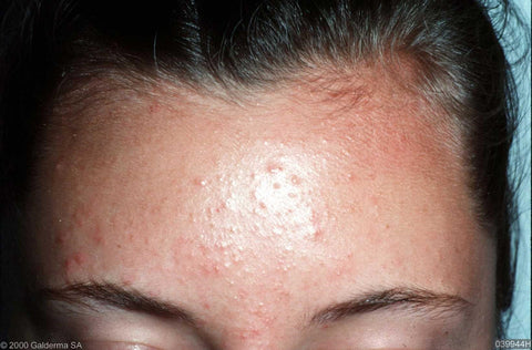 Acne Series Fungal Acne Kravebeauty