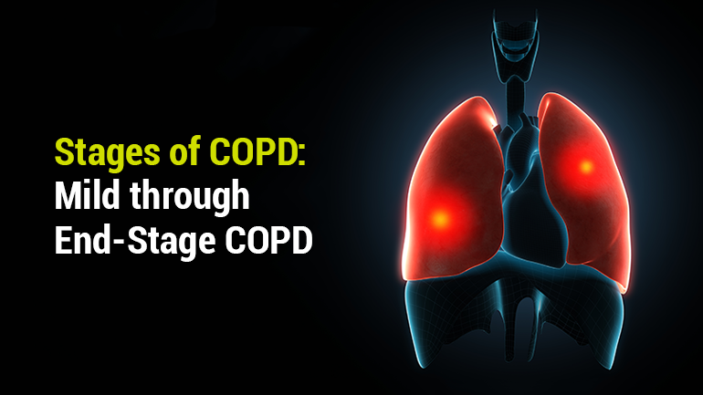 Stages of COPD: Mild through End-Stage COPD