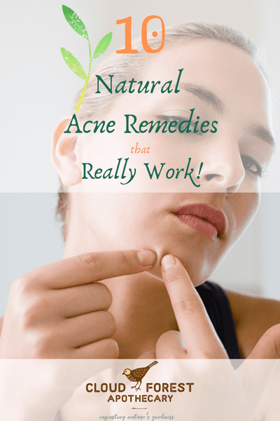 10 Natural Acne Remedies That Really Work!