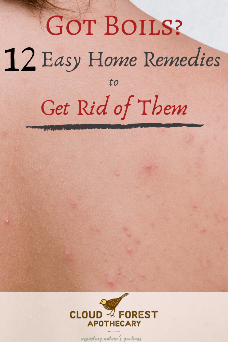 Got Boils? Here are Some Easy Home Remedies to Get Rid of Them Quickly!