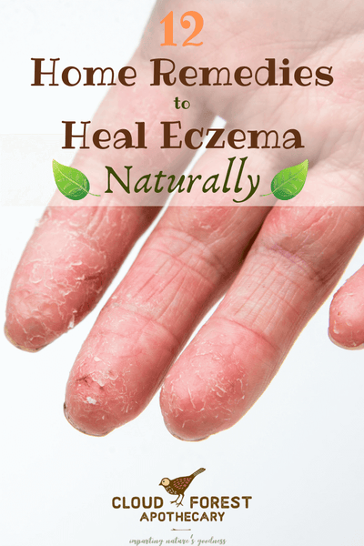 12 Home Remedies to Heal Eczema Naturally