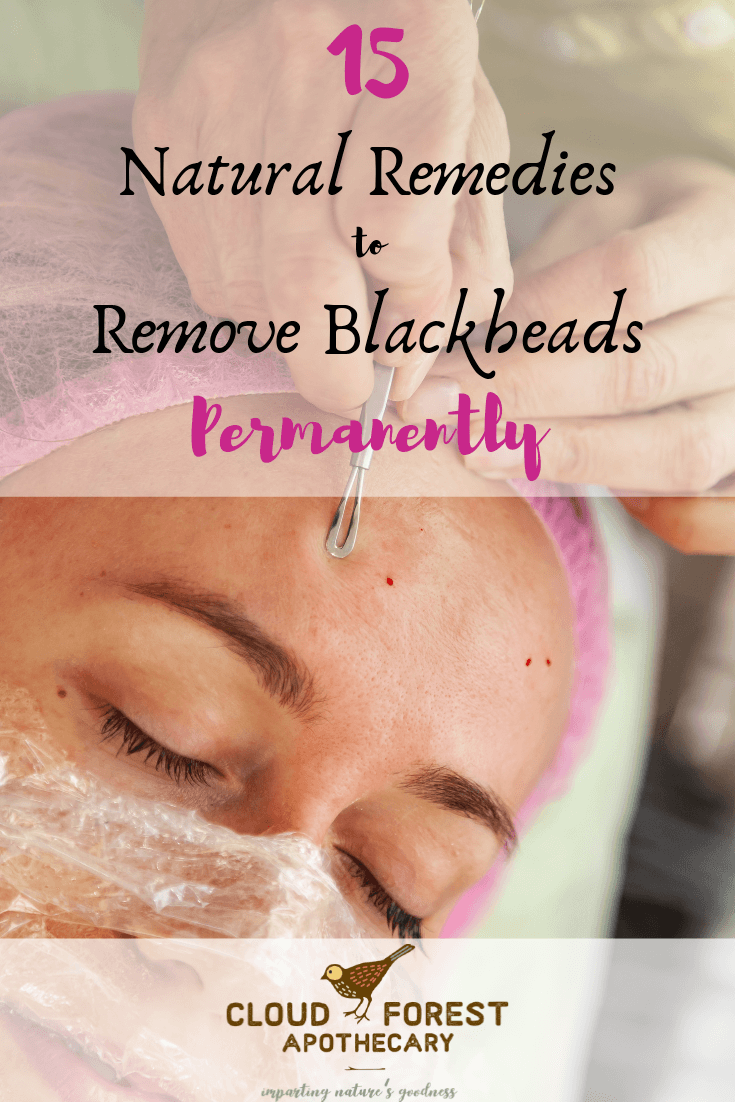 15 Natural Remedies To Remove Blackheads Permanently