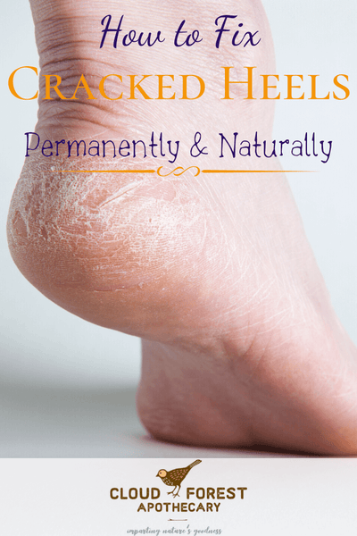 How To Fix Cracked Heels Permanently and Naturally