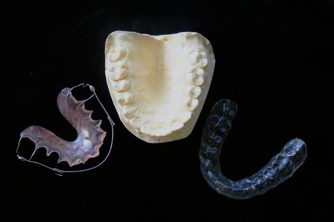 How Can Removable Aligners Be Healthier For Teeth Than Metal Braces?