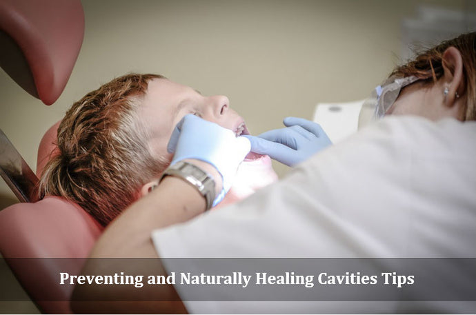 Preventing And Healing Cavities Naturally: Tips From A Dentist