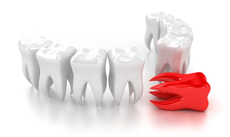 Can Tooth Loss Indicate Malnutrition?