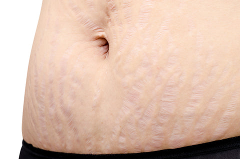 Stretch Marks  Prevention And Treatment