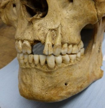Tooth Talk: How  Teeth Evolved Into 'Ultimate Cutting Tools'