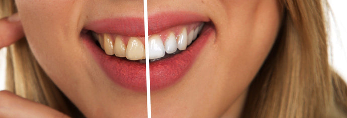 Teeth Whitening - In-Office Vs. At-Home