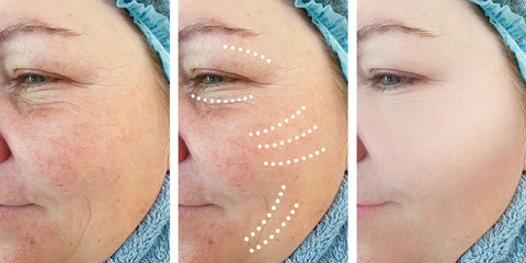 Rosacea Skin Treatment