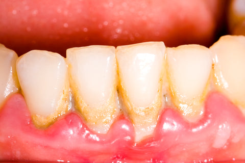 What do receding gums look like?
