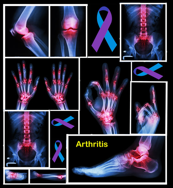 Arthritis Awareness Fabric, Arthritis Fabric, Cotton or Fleece 3675 - Beautiful Quilt