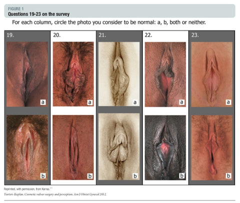 Survey question showing pictures of vulvas from the Petals project