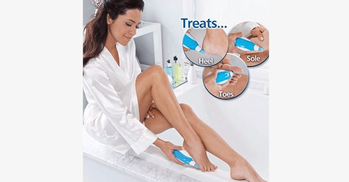 Electronic Pedi Perfect - FREE SHIP DEALS