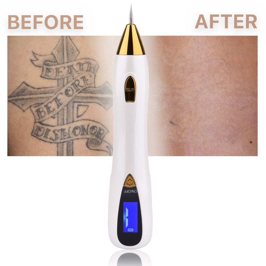 Warts, Moles and Tattoos Remover