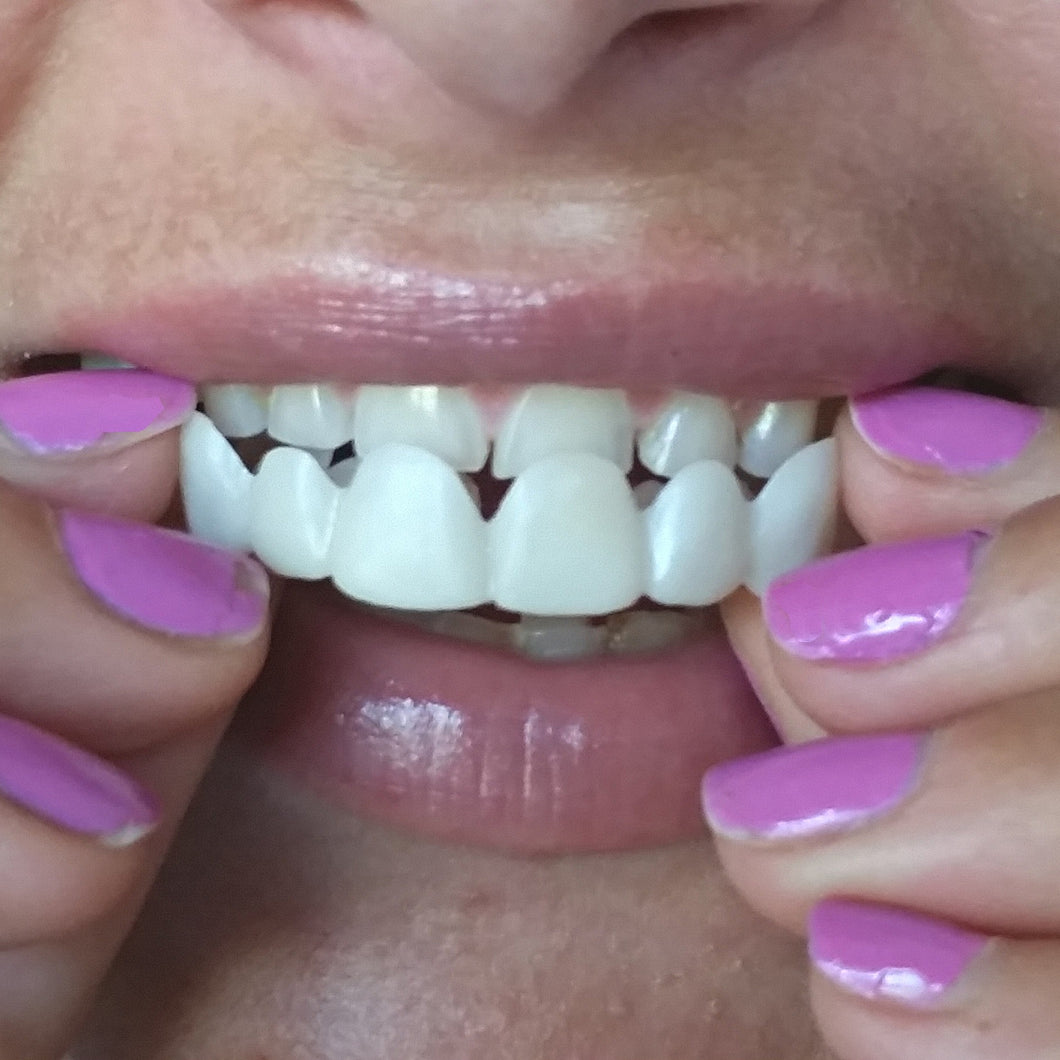 perfect smile veneer topshop