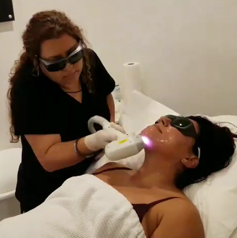 70% Off - CHIN Laser Hair Removal Promo $24.99 per session.