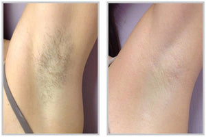 Laser Hair Removal 2 offers