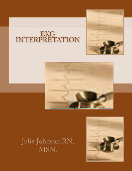 EKG Interpretation  Authored by Julie Johnson RN, MSN.