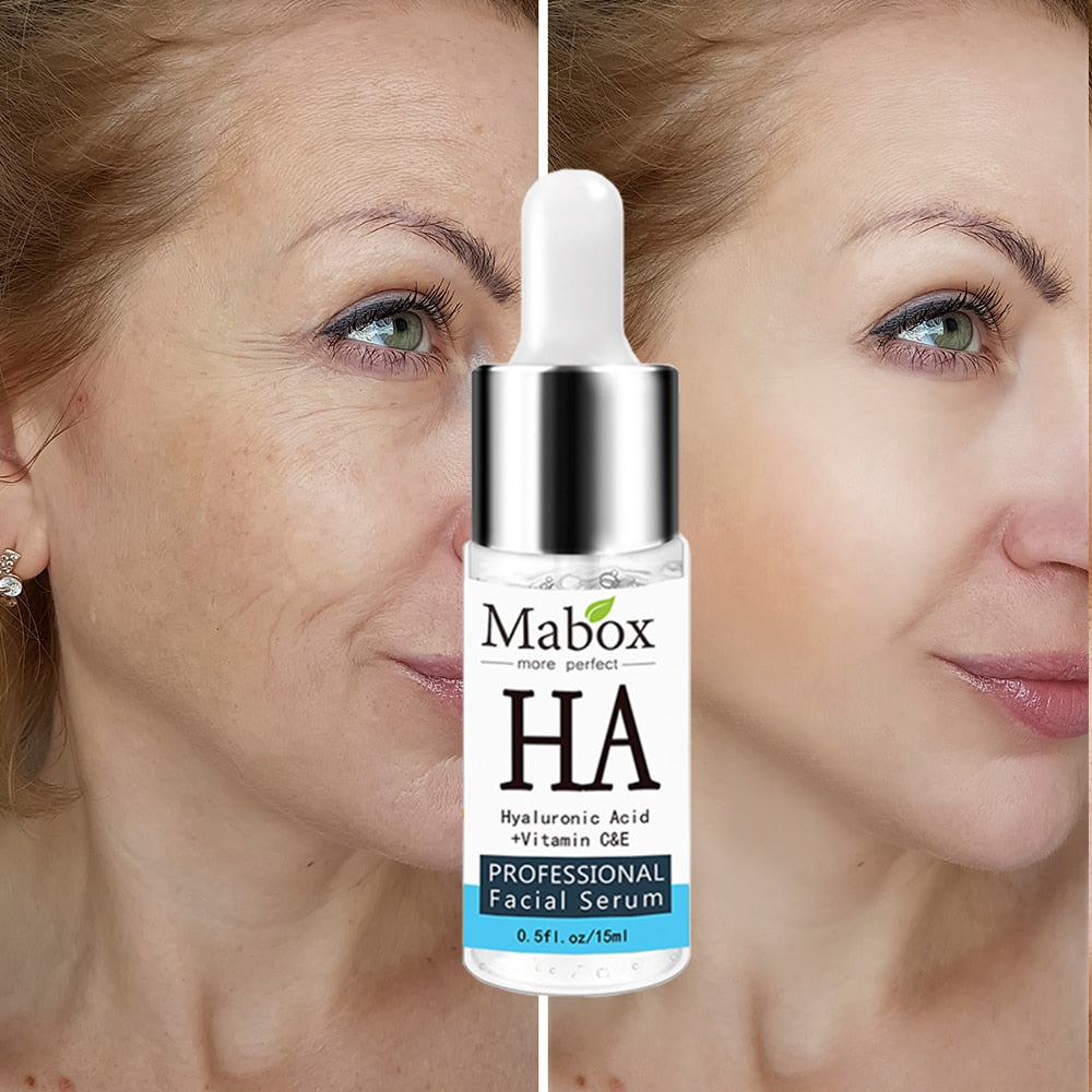 MABOX Hyaluronic Acid