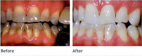 Image of Pro Nano Teeth Whitening Kit