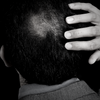 Prevent hair loss with scalp btx treatment in SINIMA