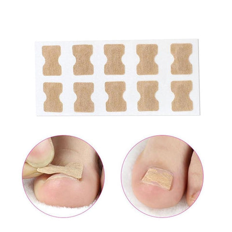 Nail Correction Stickers for Ingrown Toenails (50 count)