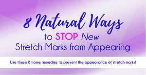 8 NATURAL WAYS TO STOP NEW STRETCH MARKS FROM APPEARING