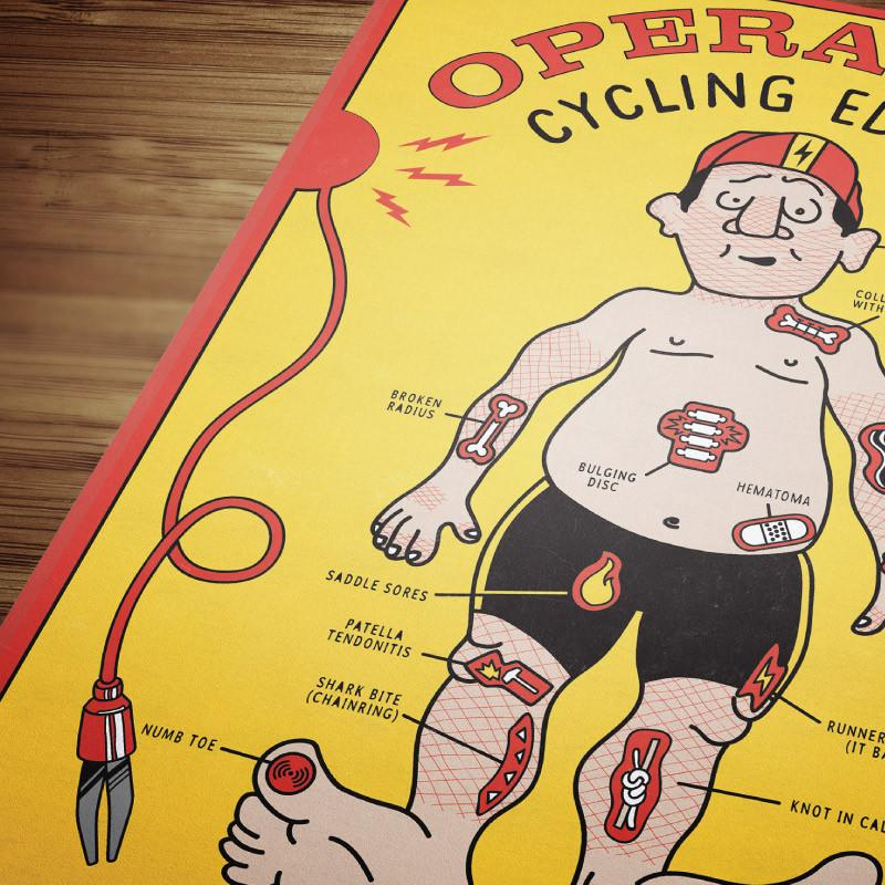 Operation - The Cycling Edition Poster - EC17