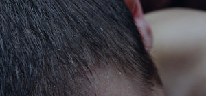 Understanding Dandruff: Causes and Treatments