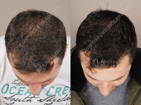 Temple and Frontal Area hair loss