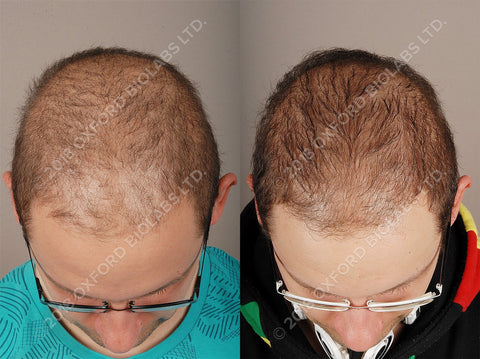 Diffuse Hair Thinning in Man
