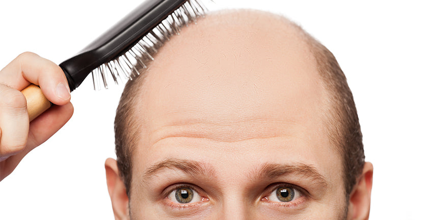 hair loss quality of life