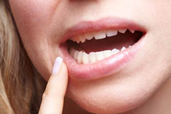 Causes of Gum Sensitivity
