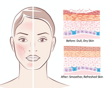 Buff away the top layer of dead skin with gentle non-motorized microdermabrasion