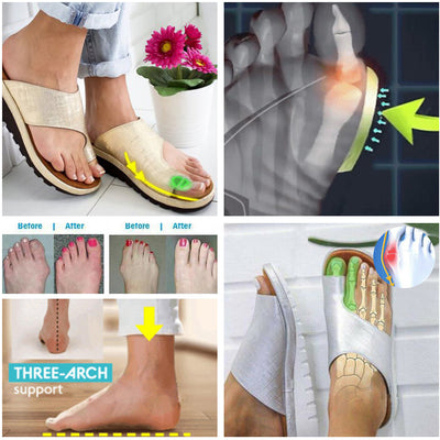 BESTWALK™ ORTHOPEDIC PREMIUM TOE CORRECTOR BUNION COMFY FOOT SANDALS