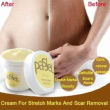 Stretch Marks And Scar Removal smooth cream for  Maternity Skin scar Repair Pasjel