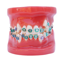 Dental Anatomy Orthodontic Treatment Study Model with Brackets