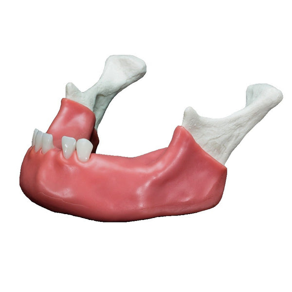 Dental Surgical Training Mandible with Teeth and Soft Tissue