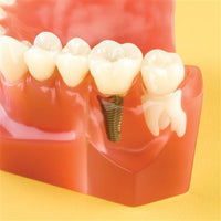 Dental Overdenture Demo 7-Unit Implant Practice Model
