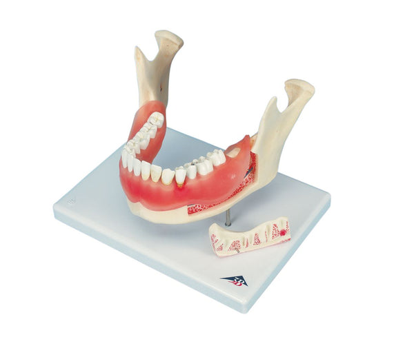 Dental Anatomy Disease Model (Lower Jaw)
