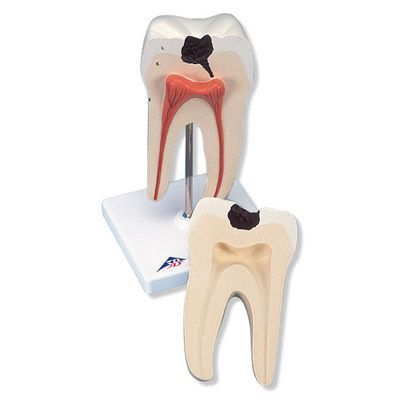 Lower Twin-Root Molar Anatomy Model 2 Parts