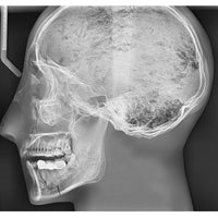 Human Antomy X-Ray Phantom Head with Teeth, Transparent