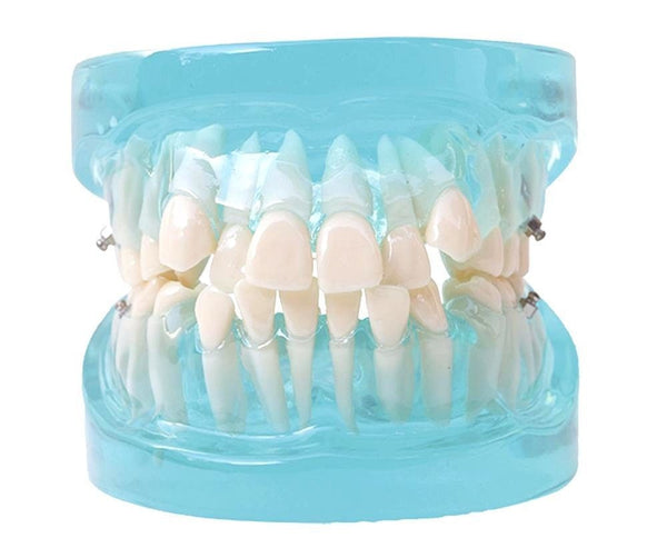 Dental Orthodontic Treatment Standard Study Model Blue