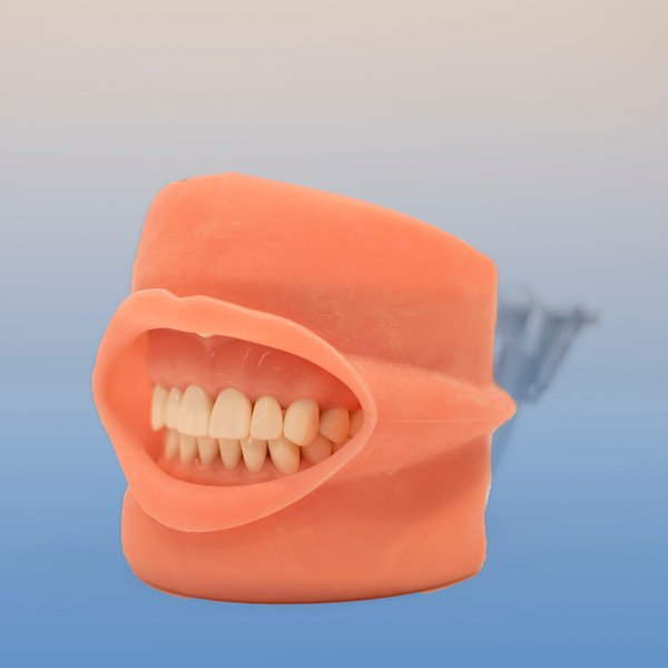 Dental Tooth Model, Soft Tissue with Cover Attached