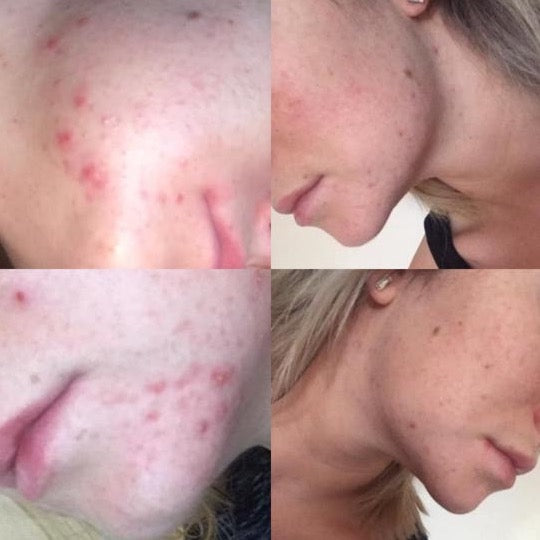 Skincare_before_and_after_photos